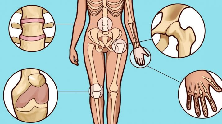 Do-You-Suspect-You-Have-Arthritis-How-To-Spot-The-Early-Symptoms
