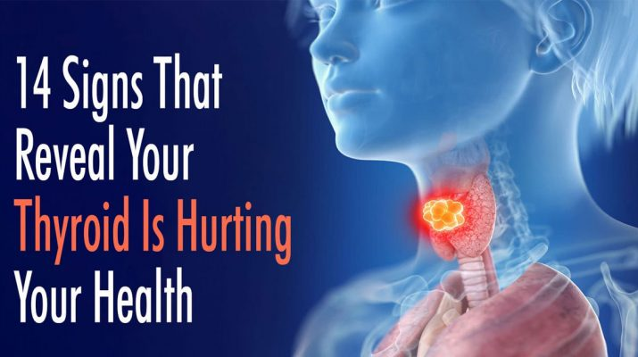 14-Signs-That-Reveal-Your-Thyroid-Is-Hurting-Your-Health
