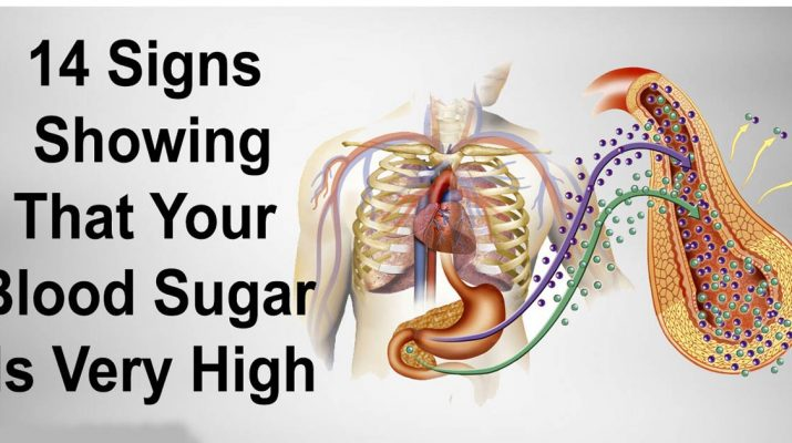 14-Symptoms-of-High-Blood-Sugar-and-Which-Foods-Reduce-It