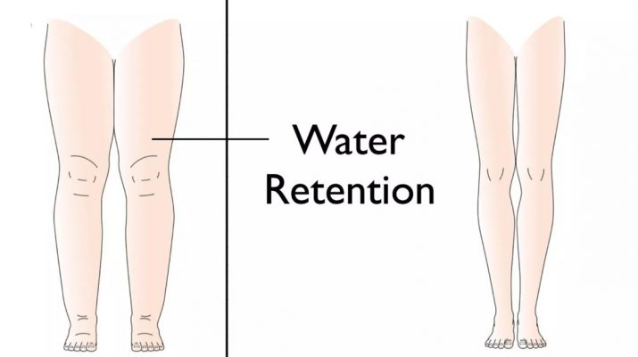 5-Reasons-Your-Body-Retains-Water-(And-How-to-Avoid-It)