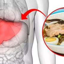 Choline Deficiency Can Trigger Fatty Liver Disease