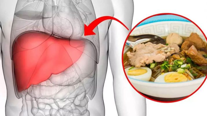 Choline-Deficiency-Can-Trigger-Fatty-Liver-Disease