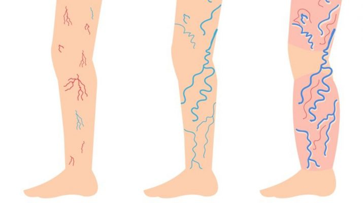 Incredibly-Simple-Ways-to-Fight-Varicose-and-Spider-Veins