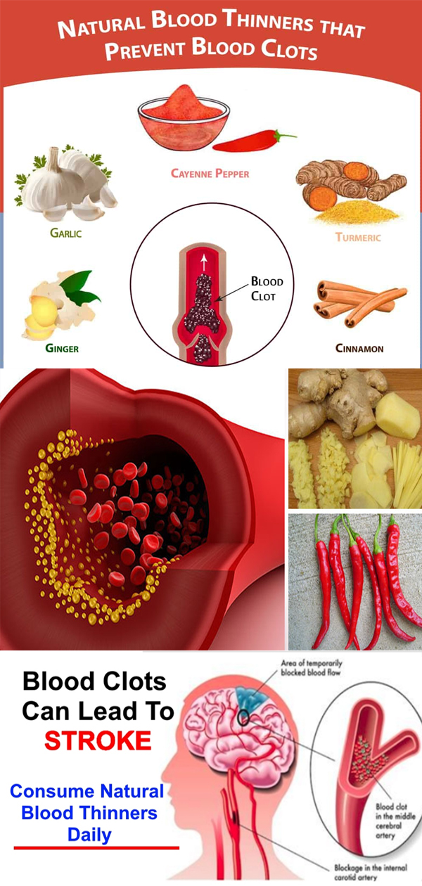 blood thinners foods natural thin supplements proven vitamins based evidence symptoms source