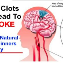 Natural Blood Thinners: Proven Foods, Supplements and Vitamins to Thin Blood (Evidence Based)