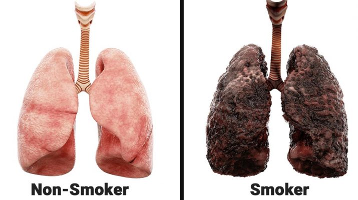 Nurse-Explains-What-Smoking-Every-Day-Does-To-Your-Lungs