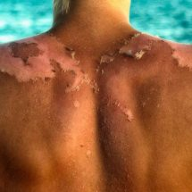 This Is How Sunscreen Could Be Causing Skin Cancer, Not the Sun