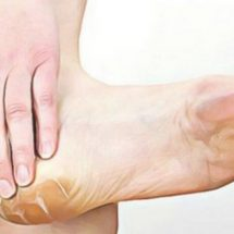 White Vinegar and Onion: The Most Effective Remedy for Feet Calluses