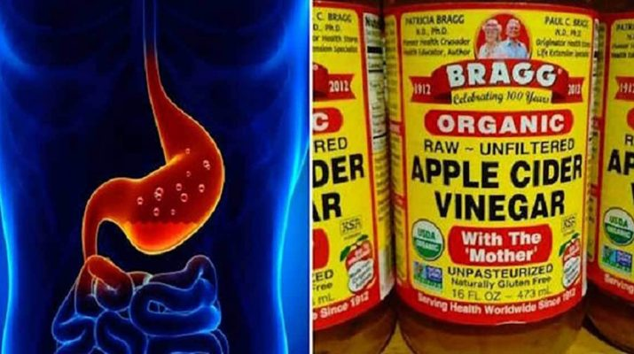 1-TBSP-of-Apple-Cider-Vinegar-For-60-Days-Can-Help-Eliminate-These-Health-Problems