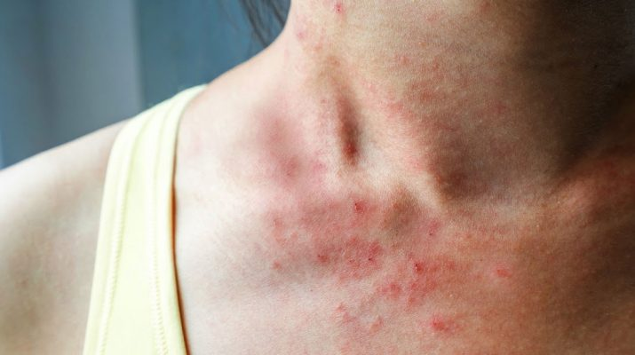 10-Things-Itchy-Skin-Says-About-Your-Health