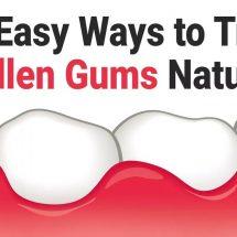 12 Easy Ways to Treat Swollen Gums Naturally