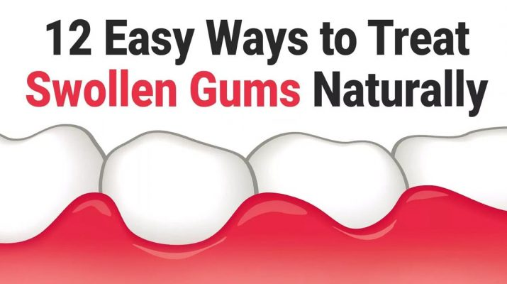 12-Easy-Ways-to-Treat-Swollen-Gums-Naturally