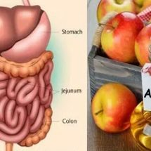 16 Proven Health Benefits of Apple Cider Vinegar and Honey (Evidence Based)