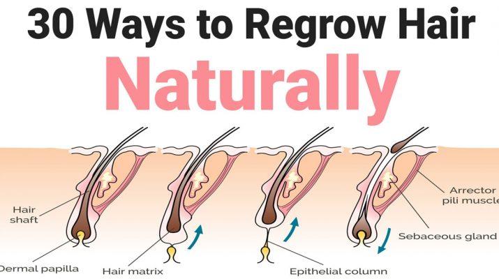 30-Ways-to-Regrow-Hair-Naturally