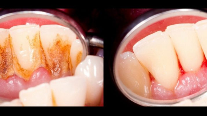 4-Mixtures-That-Completely-Remove-Plaque-From-Your-Teeth