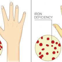 7 Signs of Chronic Iron Deficiency Most Women Ignore