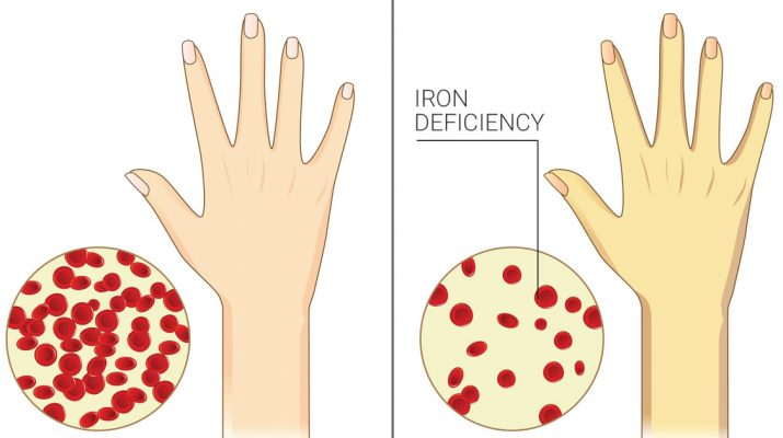 7-Signs-of-Chronic-Iron-Deficiency-Most-Women-Ignore