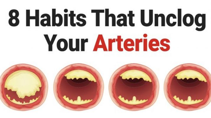 8-Habits-That-Unclog-Your-Arteries
