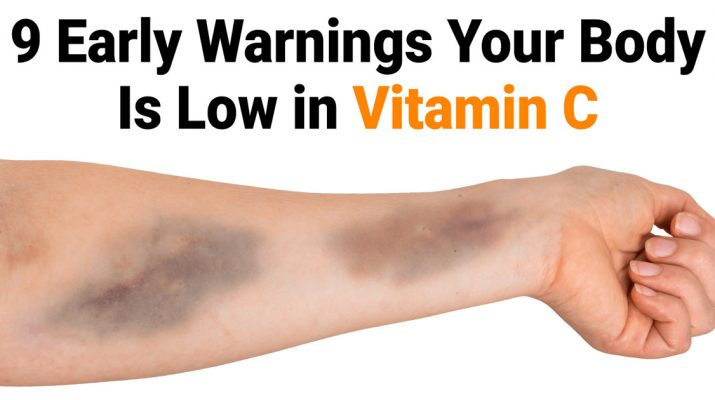 9-Early-Warnings-Your-Body-Is-Low-in-Vitamin-C