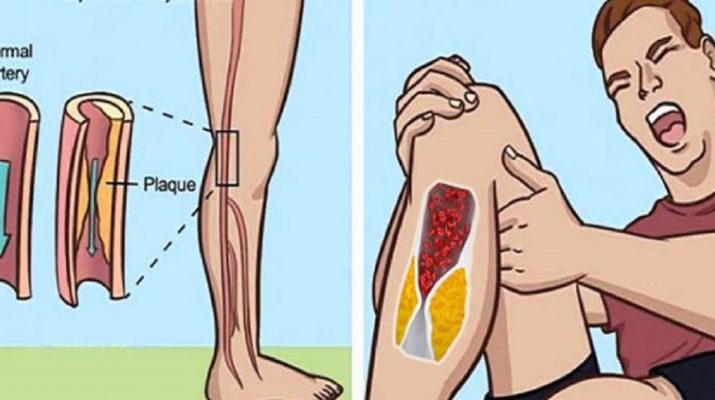 Here's-How-to-Thin-Your-Blood-Naturally-and-Prevent-Deadly-Blood-Clots