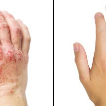Researchers Reveal 15 Ways To Get Rid Of Eczema