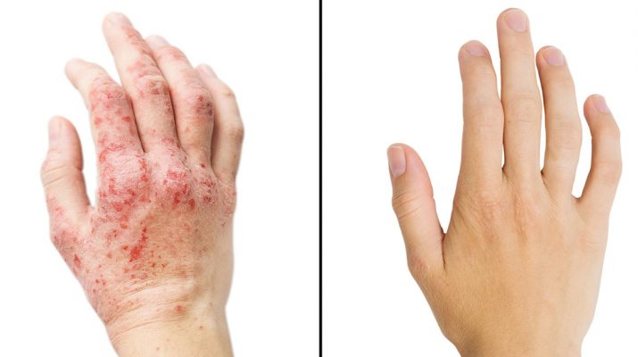 Researchers-Reveal-15-Ways-To-Get-Rid-Of-Eczema
