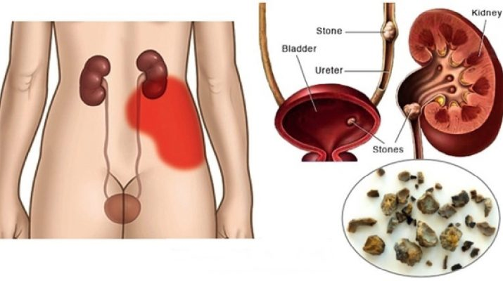 You-Need-A-Kidney-Cleanse.-Here's-How-To-Flush-Out-Toxins-From-Your-Kidneys
