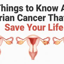 10 Things to Know About Ovarian Cancer That Can Save Your Life
