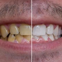 10 Ways to Clean Yellow Teeth Naturally