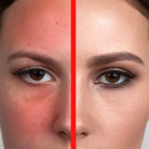 15 Ways to Reduce Redness On Your Face Quickly