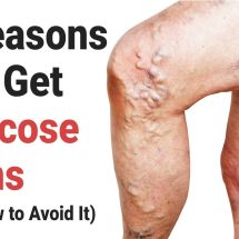 5 Reasons You Get Varicose Veins (And How to Avoid It)