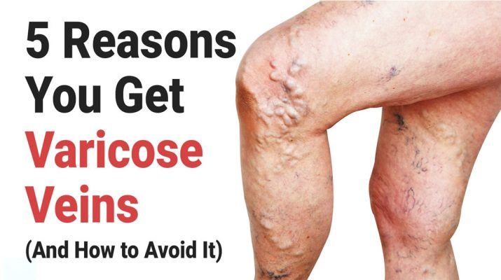 5-Reasons-You-Get-Varicose-Veins-(And-How-to-Avoid-It)