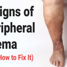 5 Signs of Peripheral Edema (And How to Fix It)