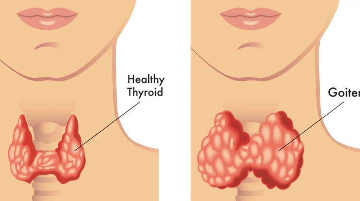 5-Things-You-Need-To-Know-About-Your-Thyroid