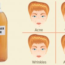 50 Amazing Ways To Use Apple Cider Vinegar For Health And Home