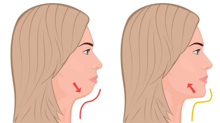 7-Exercises-That-Remove-Double-Chin