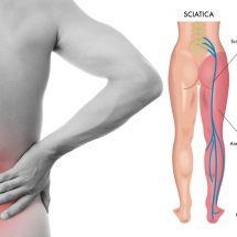 8 Sciatica Stretches That Prevent and Relieve Hip and Lower Back Pain