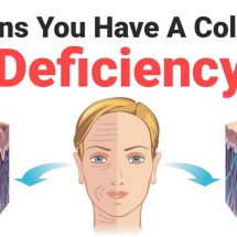 8 Signs You Have A Collagen Deficiency
