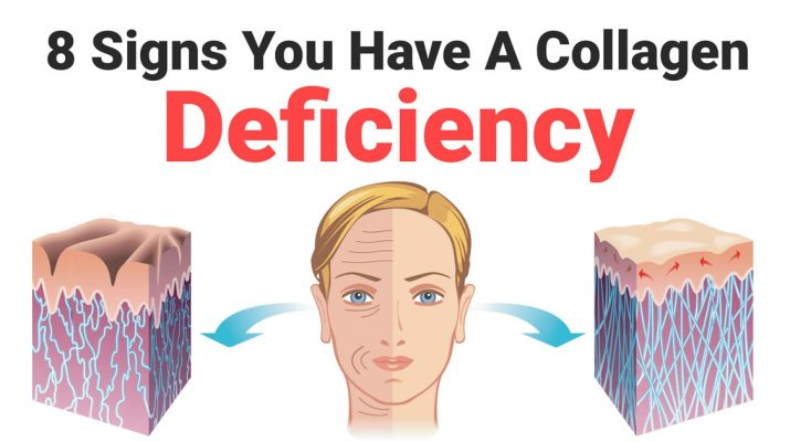 8-Signs-You-Have-A-Collagen-Deficiency
