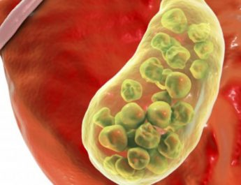 Complete Guide to Safe Gallbladder Cleanse That Will Overhaul Your Health