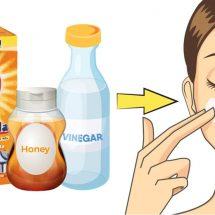 Honey, Baking Soda & Apple Cider Vinegar Mask For Acne & Radiant Skin