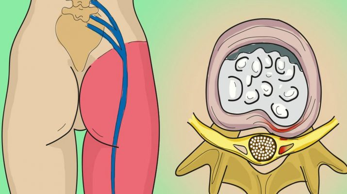How-to-Release-the-Pinched-Nerve-in-the-Lumbar-Area-(sciatica)--5-Simple-Ways-to-Get-Rid-of-the-Pain