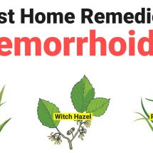 10 Best Home Remedies For Hemorrhoids