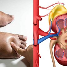 25 Hidden Signs You Have Kidney Problems
