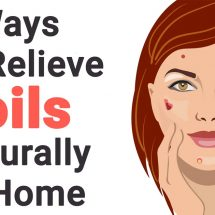 7 Ways to Relieve Boils Naturally At Home