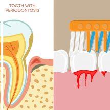 Dentist Explains 10 Ways to Treat Bleeding Gums