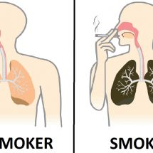Nurse Explains What Smoking Every Day Does To Your Lungs