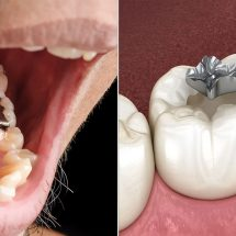 Researchers Explain Why You Should Never Get Silver Fillings
