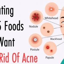 Stop Eating These 5 Foods If You Want To Get Rid Of Acne