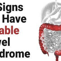 11 Signs You Have Irritable Bowel Syndrome